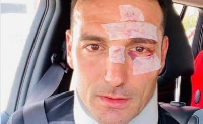 حادثه شدید رانندگی برای سرمربی تیم ملی آرژانتین